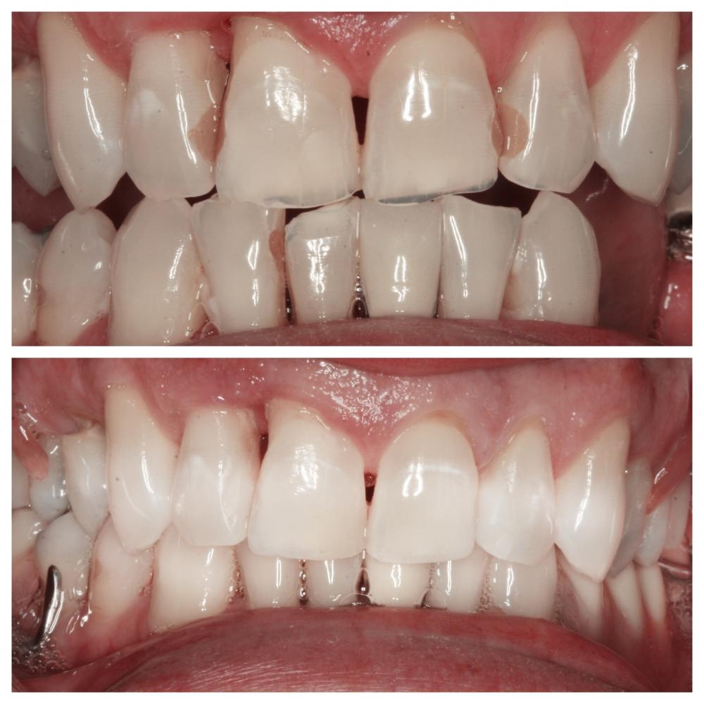 Services Teeth Whitening Dean Dental Team Washington Pa Dentist Dentist Washington Pa Dental Washington Pa Cosmetic Dentistry Washington Pa Teeth Whitening Washington Pa Veneers Washington Pa Dental Implants Washington